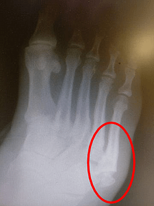 Jones Fracture Healing time and recovery time