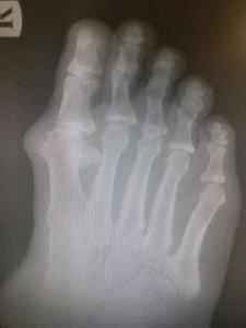 Big toe joint arthritis hallux rigidus bone spur