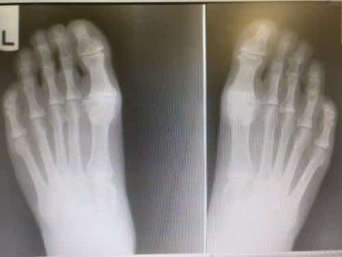 Hallux rigidus big toe joint