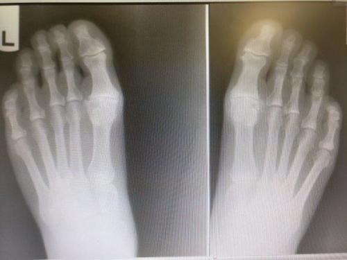 Hallux rigidus big toe joint