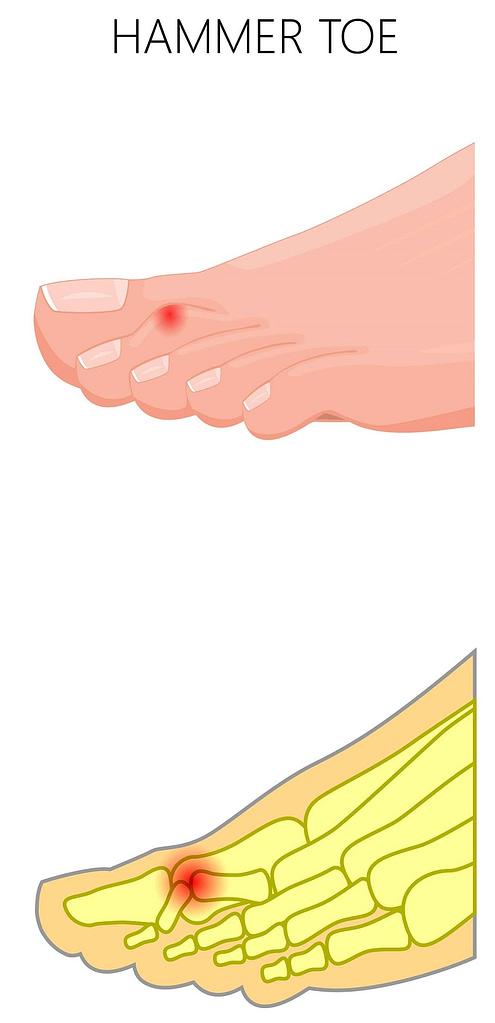claw toe, malle toe, hammer toe