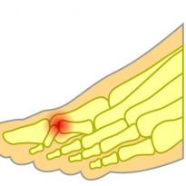 Hammer toe pain 2nd toe
