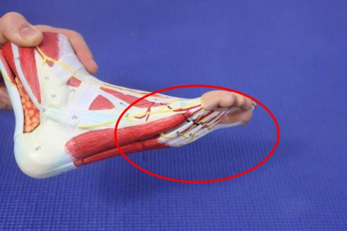Sore spot on the ball of the foot causes, symptoms treatment