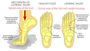 Top of the foot sprain pain fracture
