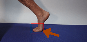Hyperextension of big toe joint
