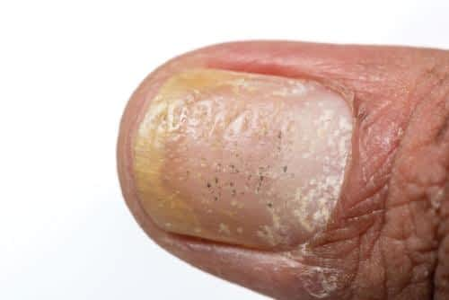White nails: white spots, white marks & white toenail fungus