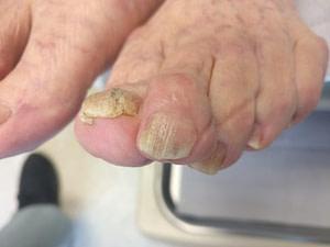 Vicks Vapor Rub Toenail Fungus Home Treatment