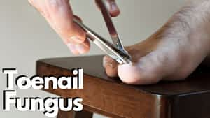 Toenail Jam Under the Toenail Treatment