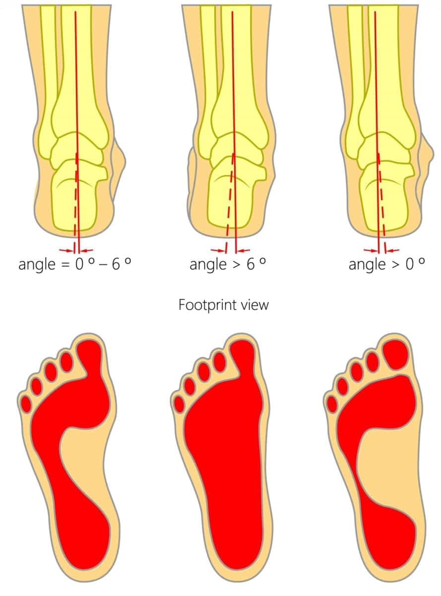 Shooting Pain in the Little Toe