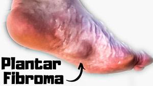 Plantar Fibroma Causes & Treatment