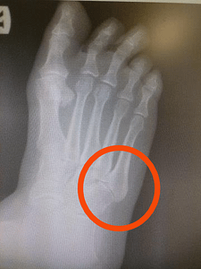 5th metatarsal styloid process pain
