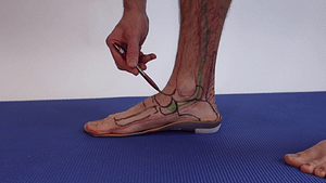 navicular stress fracture orthotics