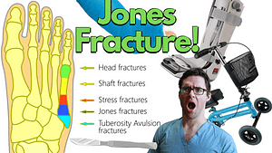 5th metatarsal fracture jones fracture.