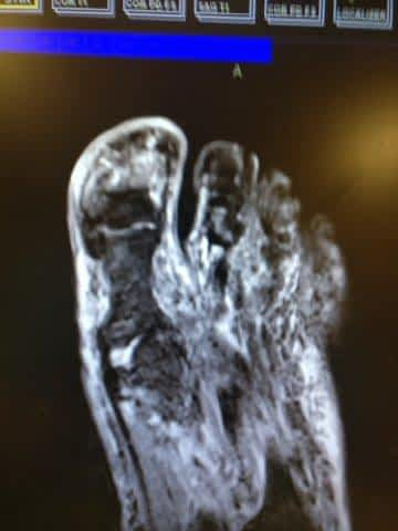 MRI of ingrown toenail and bone infection of the big toe joint