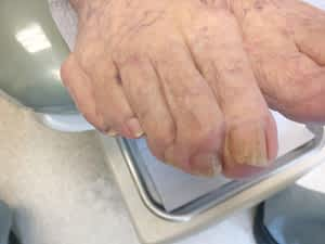Thick Yellow Toenail Fungus Treatment