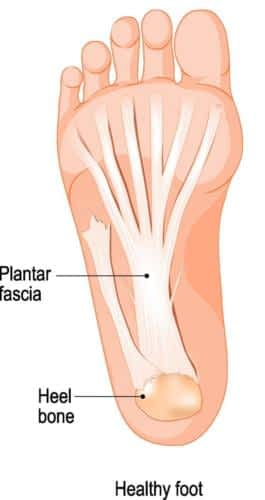 Plantar fasciitis anatomy bottom of the heel