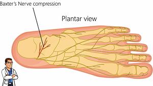 Pinched nerve in the heel bone Baxter's Nerve
