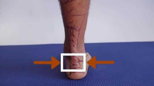 Insertional heel pain achilles tendon