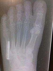 Jones fracture healing time percutaneous screw fixation