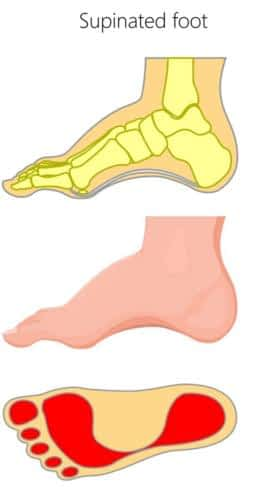 High arch supination foot type heel pain