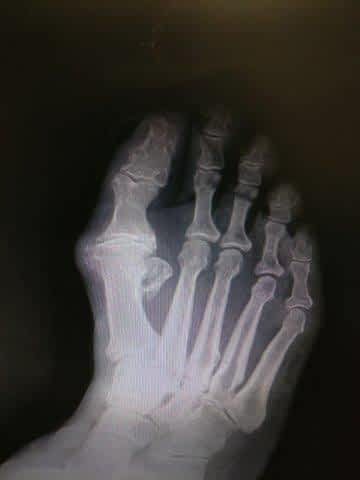 Big toe joint arthritis and hallux rigidus treatment