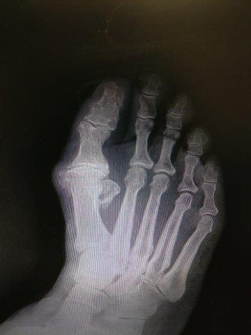 Big toe joint arthritis and hallux rigidus treatment