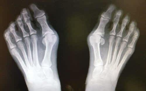 bunion hallux valgus, arthritis of the big toe joint