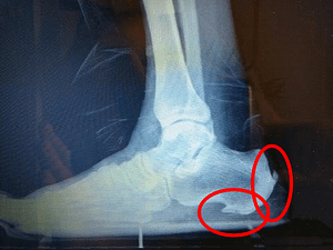 Achilles tendonitis insertional heel spur surgery recovery time