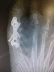 big toe joint fusion with a plate 1st MTPJ fusion