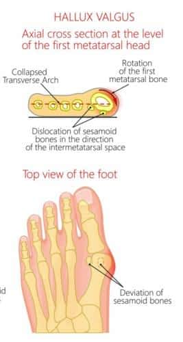 Bunion stages sesamoiditis