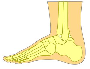 Top of the foot bruising