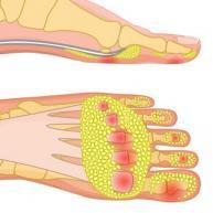 Fat pad atrophy heel pain normal fat pad treatment