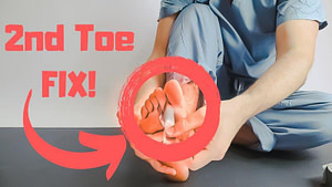 Capsulitis of the Second Toe Taping: Plantar Plate Tear Treatment 2020