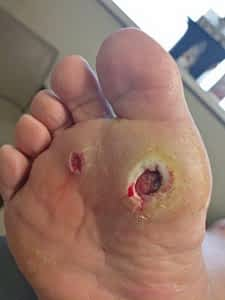 Big toe joint ulcer charcot marie tooth disease with pain needs surgery