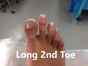 Long 2nd toe, toenail damage and injury