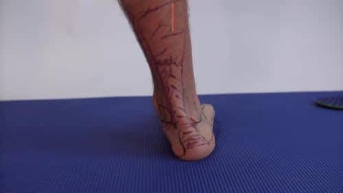 Heel pain flat foot overpronation