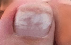 White Spots & White Marks From Toenail Polish