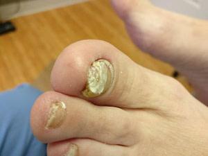 Keratin granulations and big toenail fungus.