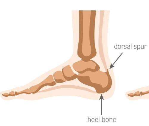 Bottom of the heel spur plantar fasciitis spur