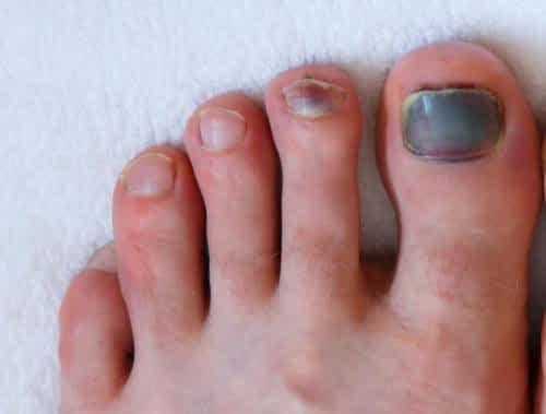 Bruise Under the Big Toenail Treatment: Causes & Symptoms.