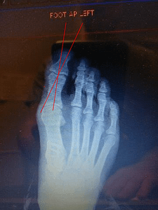 big toe joint hallux valgus interphalangeus