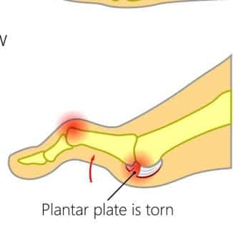 Plantar plate injury to the 2nd toe joint with tear repair