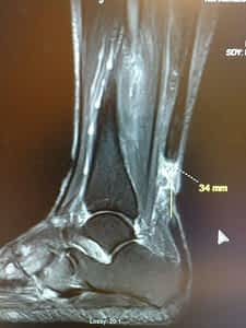 Achilles Tendon Tear From chronic achilles tendonitis