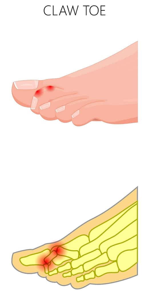 hammer toe and mallet toe