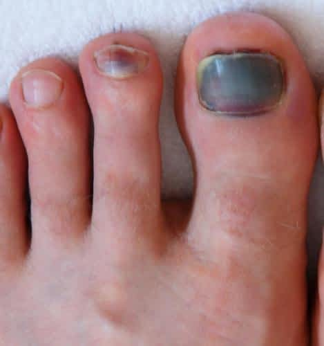 Bruised Toenail: Causes & Best Treatment: