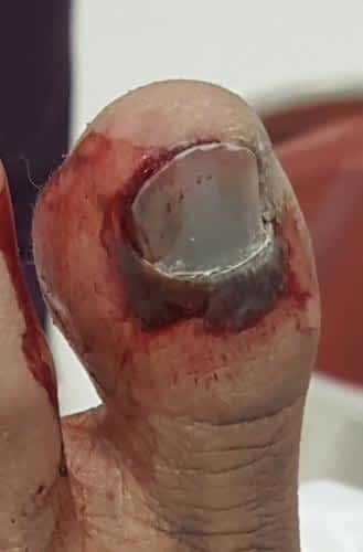 Bleeding big toenail with broken big toe