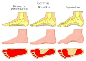 Flat foot pain flat feet