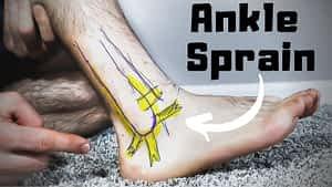 Ankle Sprain! Treatment