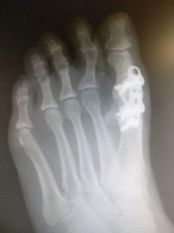 great toe joint fusion recovery time great toe joint