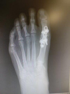 big toe joint fusion great toe joint fusion